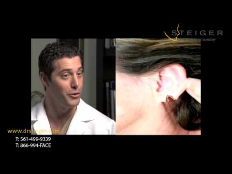 split-ear-lobe-repair--ear-plastic-surgery