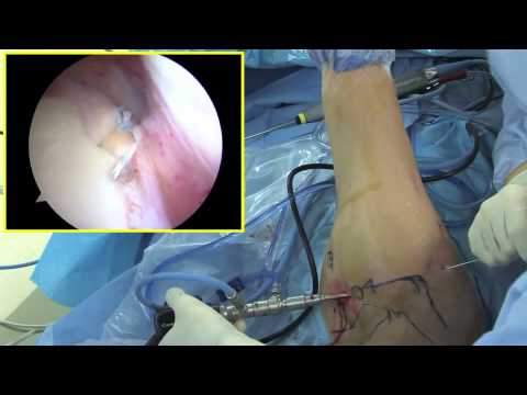 Arthroscopic SLAP repair by Dr. Patrick Jost