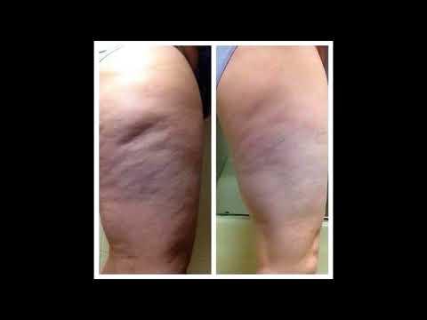 Best Cellulite Cream Amazon Oz Shape Cellulite Cream The Best