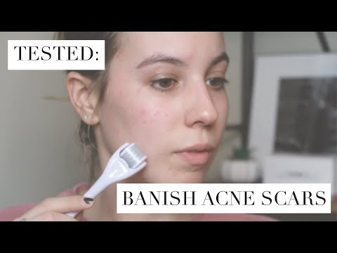Testing Banish |  How To Get Rid of Acne Scars At Home