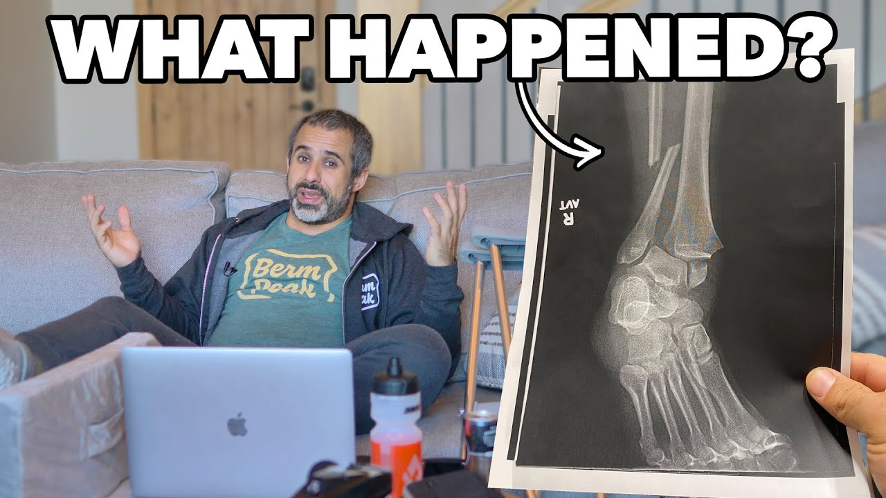 Download So here's the story with my injury