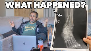 So here's the story with my injury