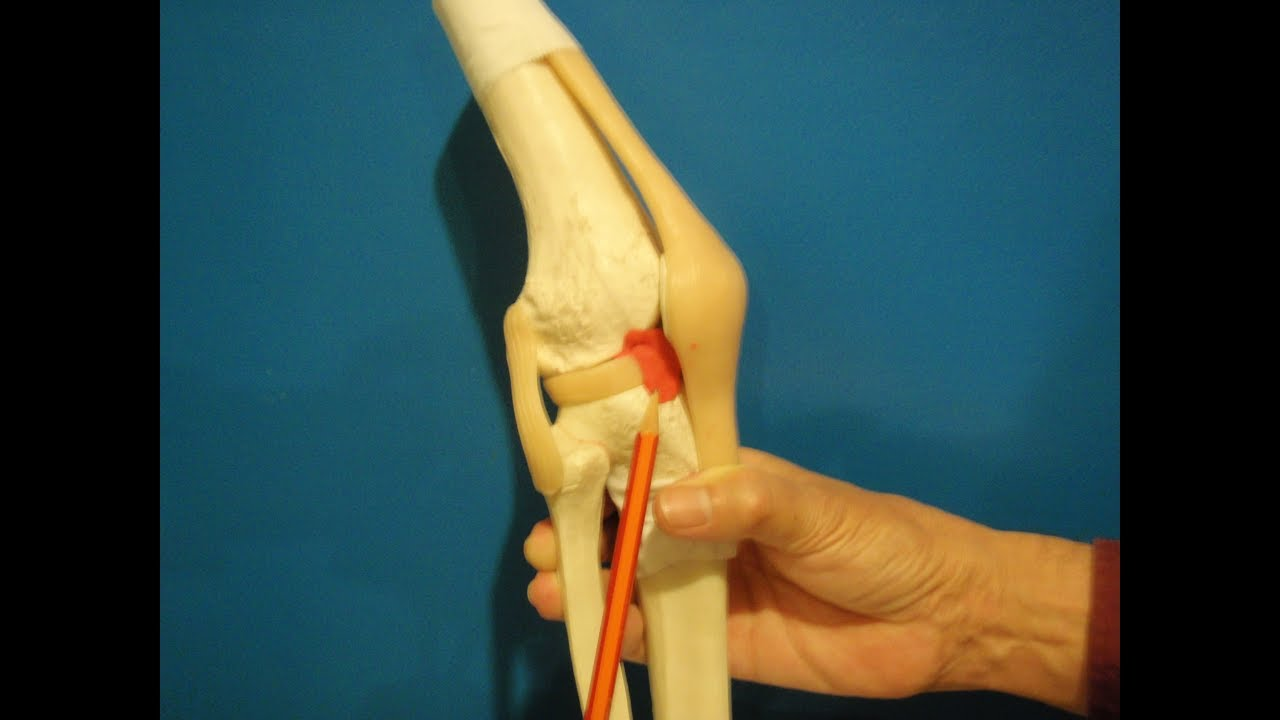 Knee pain Osteopathy : trapped plicae, synovial fold - YouTube