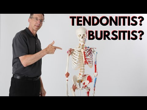 What is Causing Your Shoulder Pain? Tendonitis? Bursitis? How to Know?