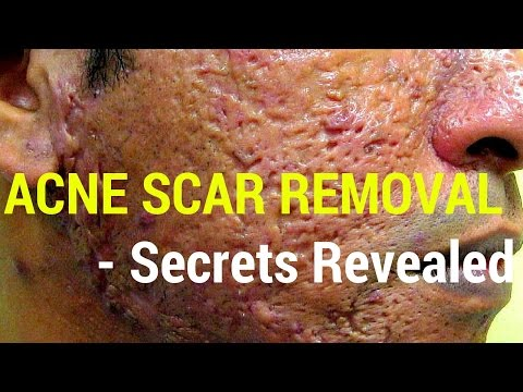 how-to-treat-acne-scars--dermatology-secrets-revealed