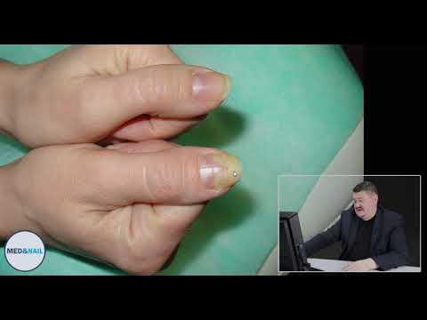 Случай из практики: онихолизис