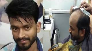 before & after REMY HAIR bonding system for man in delhi [ RIZY]  9582581323