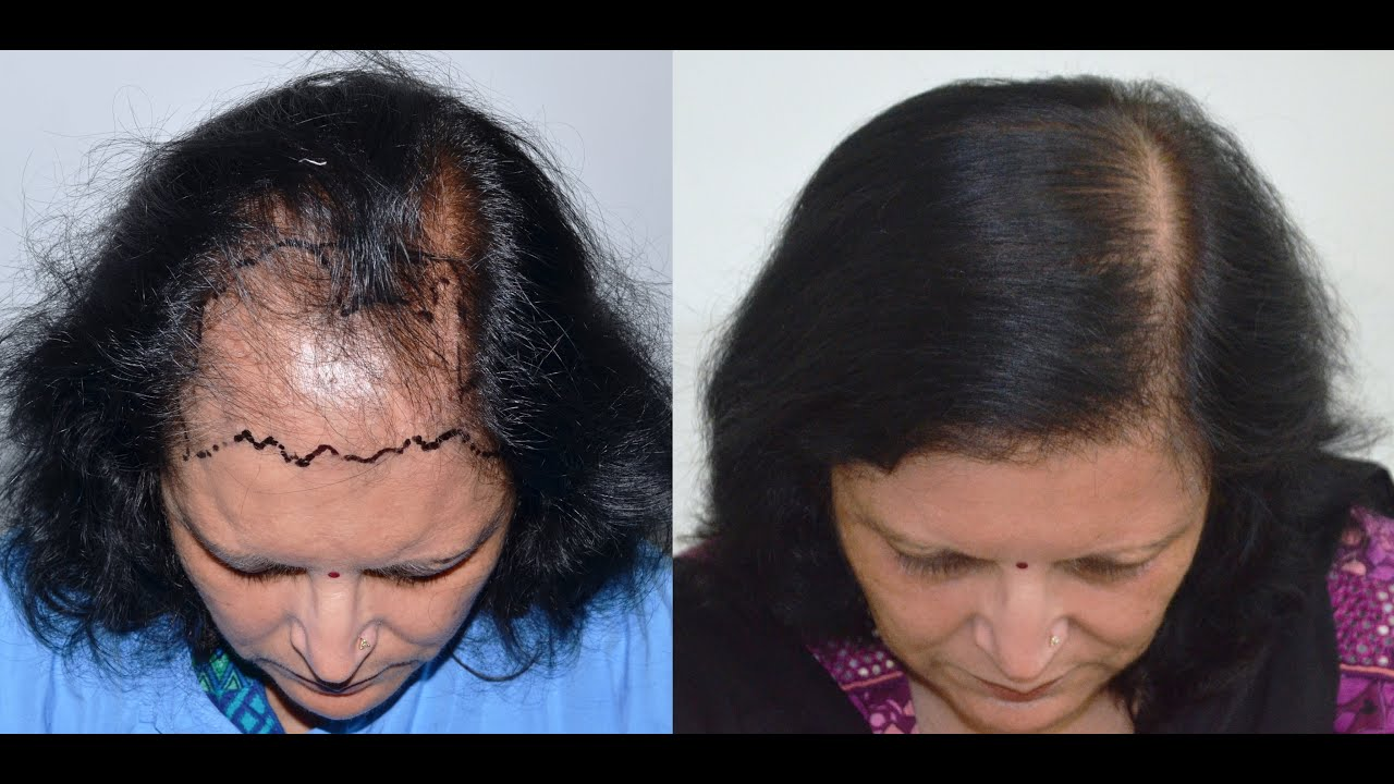 female hair transplant medispa