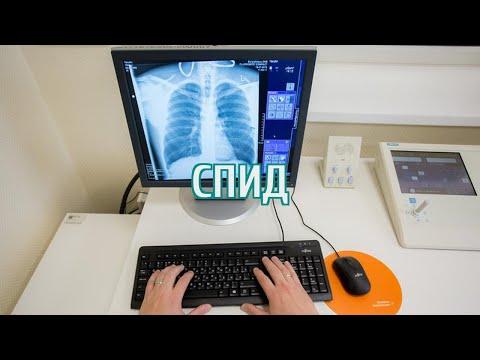 🔴 В Курганской области восемь из десяти ВИЧ-инфицированных больны туберкулезом