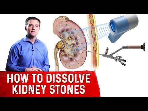 How to Dissolve Kidney Stones (Part 1)