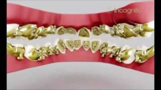 г.Чита Профессорская стоматология  брекиты (Incognito)(, 2011-04-23T00:28:22.000Z)