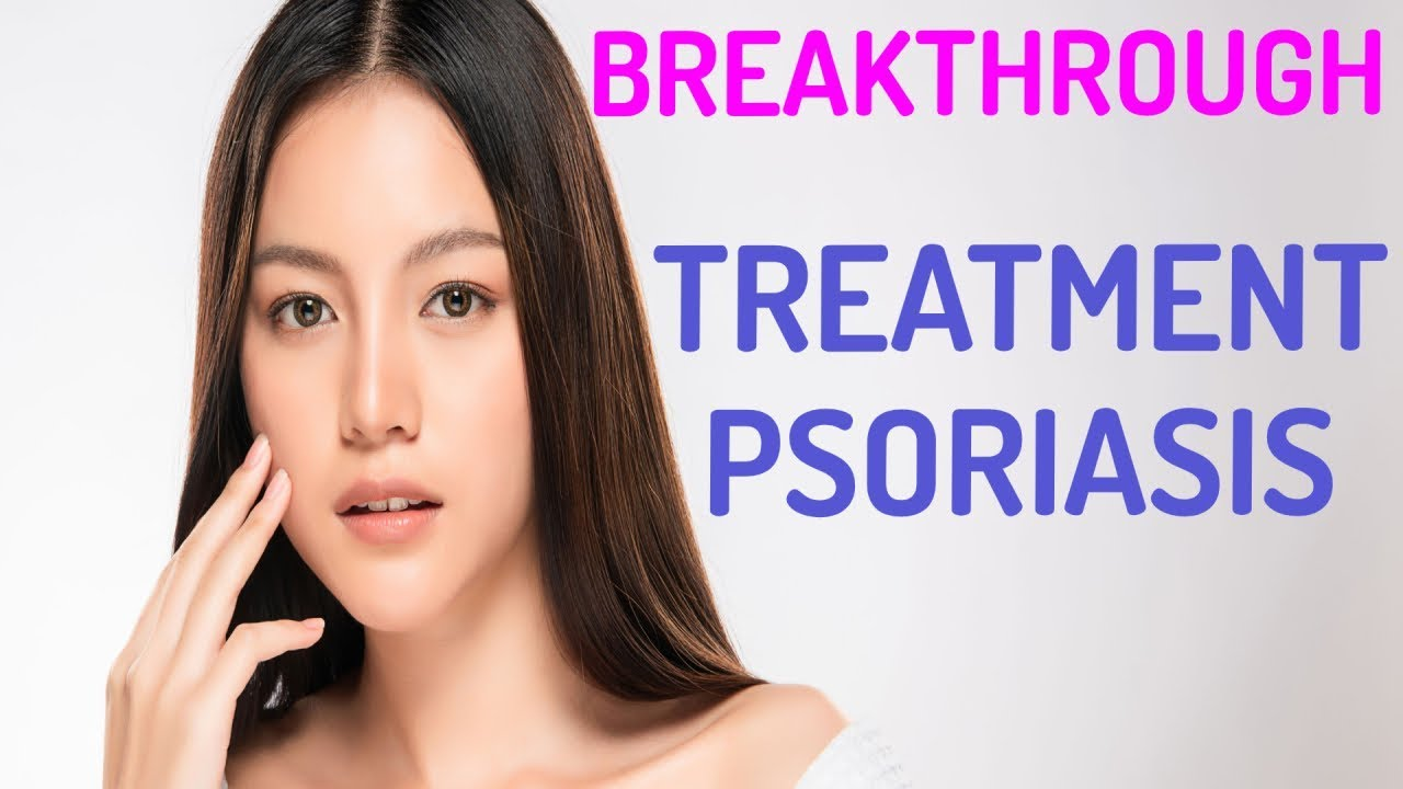 Latest Psoriasis Treatments