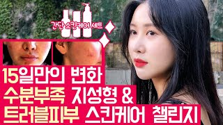 [뷰리봉 BeautyBong TV] 수부지 트러블피부 …