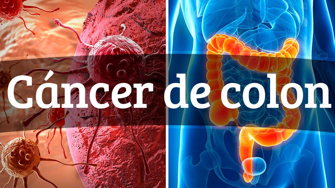 Colon en de prohibidos alimentos cancer