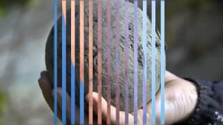 варикозное расширение вен тромбофлебит лечение(, 2015-08-19T09:42:10.000Z)