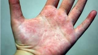 DermTV - How to Treat Eczema [DermTV.com Epi #178]