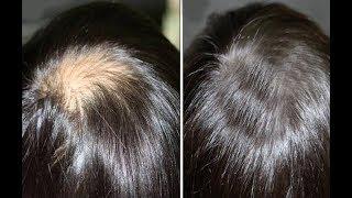 أفضل طريقة لعلاج الصلع و التعلبة و الفراغات بين الشعر و النتائج في وقت قصير !