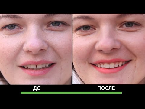 Как убрать расщелину между передними зубами