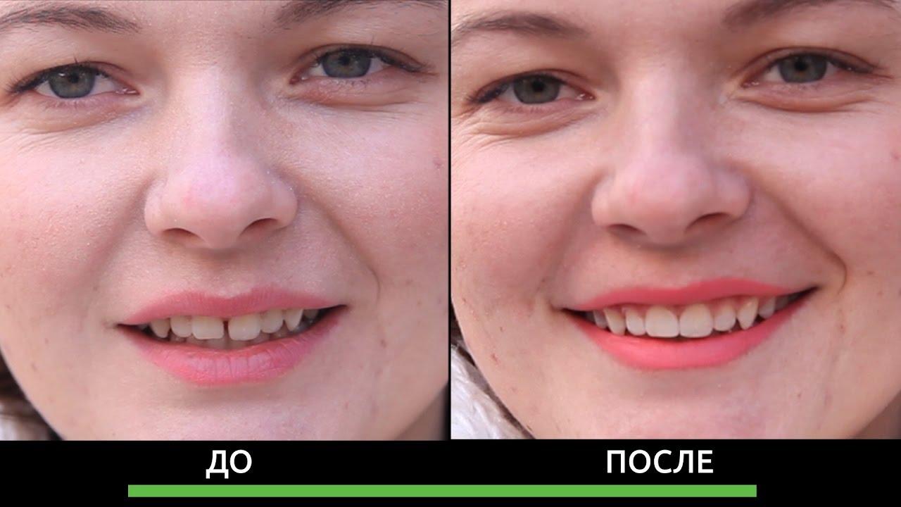 Закрыть щель между зубами винирами