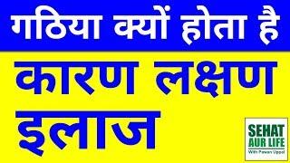Arthritis Bimari Kya Hai, Causes, Symptoms, Treatment, Gathiya Rog Ke Lakshan, ilaj, Karan, In Hindi