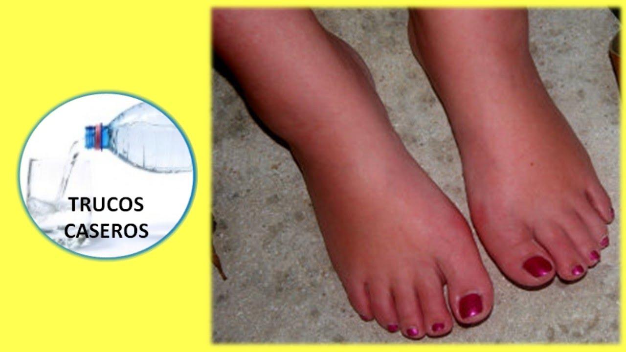 ¿Por qué se hinchan los pies y las manos?