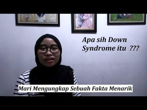 Pengenalan Down Syndrome (Apa itu Down Syndrome?) dan ...