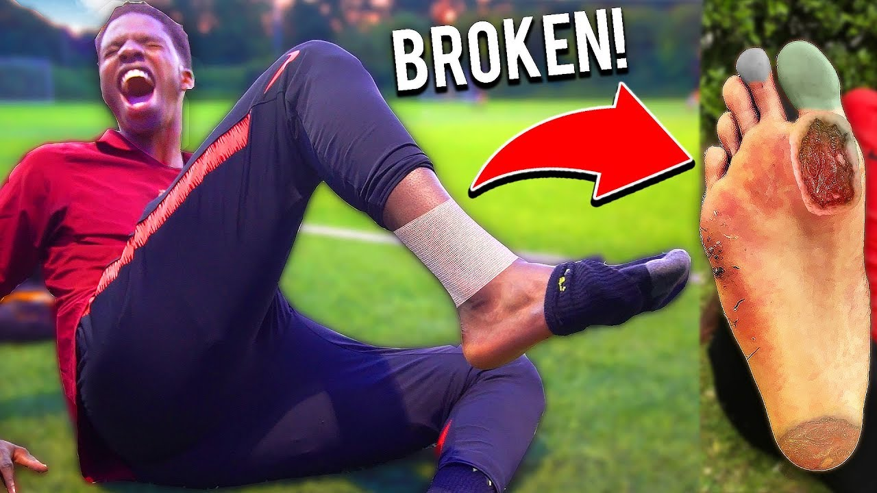 This Football Team BROKE MY FOOT In This Soccer Match (INJURY)