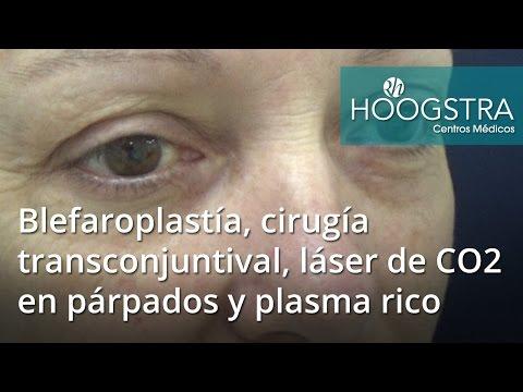 Blefaroplastía, cirugía transconjuntival, láser de CO2 en párpados y plasma rico (16139)