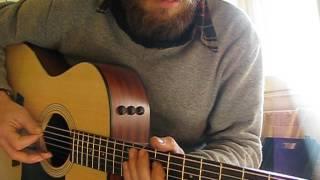 Viva forever acoustic guitar set