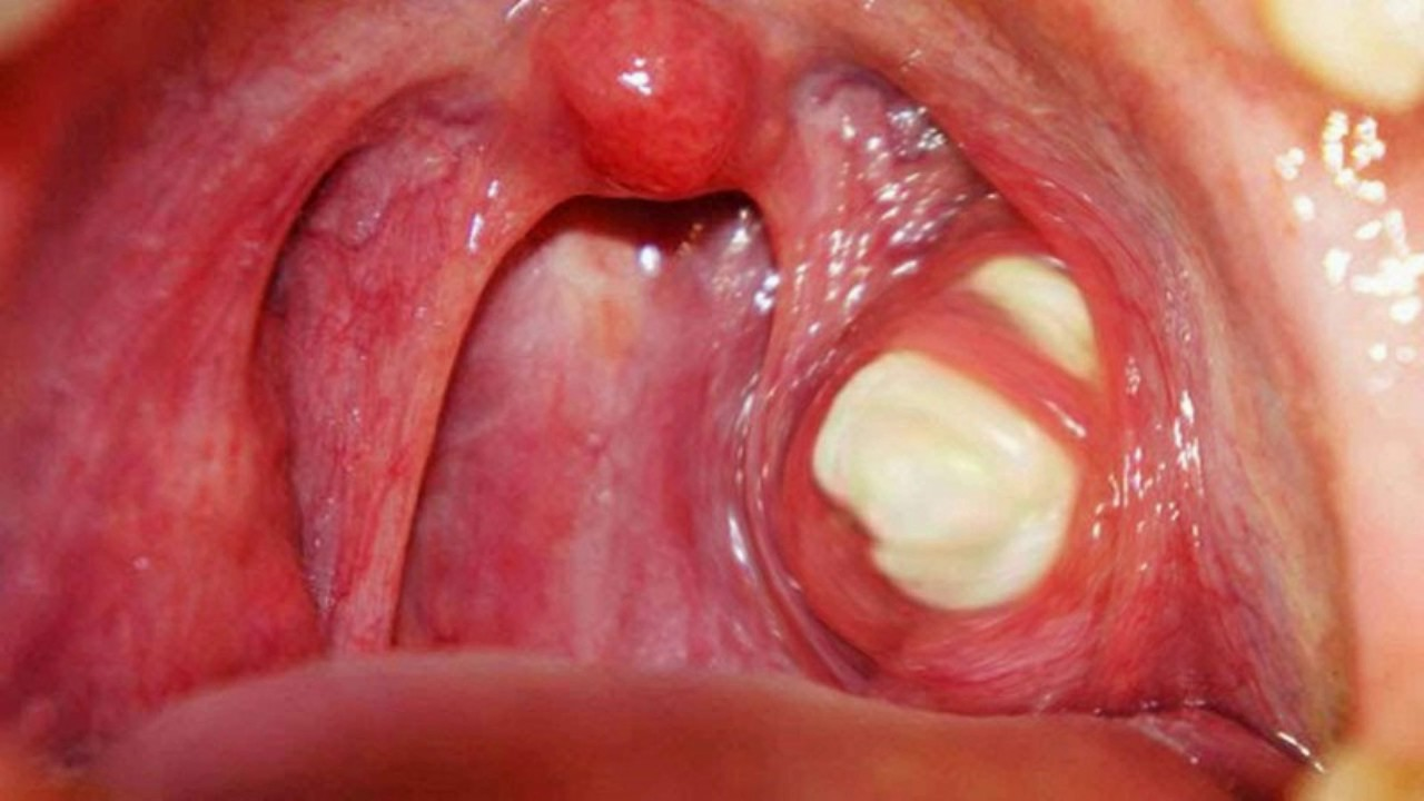 Strep throat images adults speaking, opinion