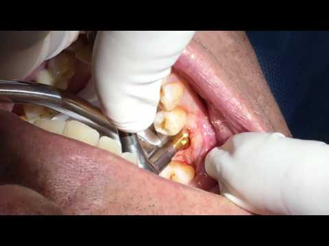 Dental Implant Healing Cap Placement Part 6 | Dr. John Paul Gallardo | Miami, FL