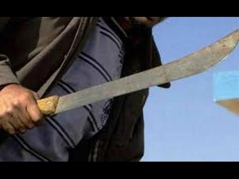 Resultado de imagen para Haitiano amputa brazo de machetazo