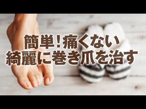 【巻き爪治療】痛みナシ!簡単!巻き爪を美しいカタチに治す方法【Dr.Ben*】