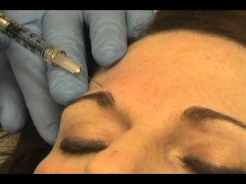 Botox Injections for Migraine Therapy (part 1 of 3)
