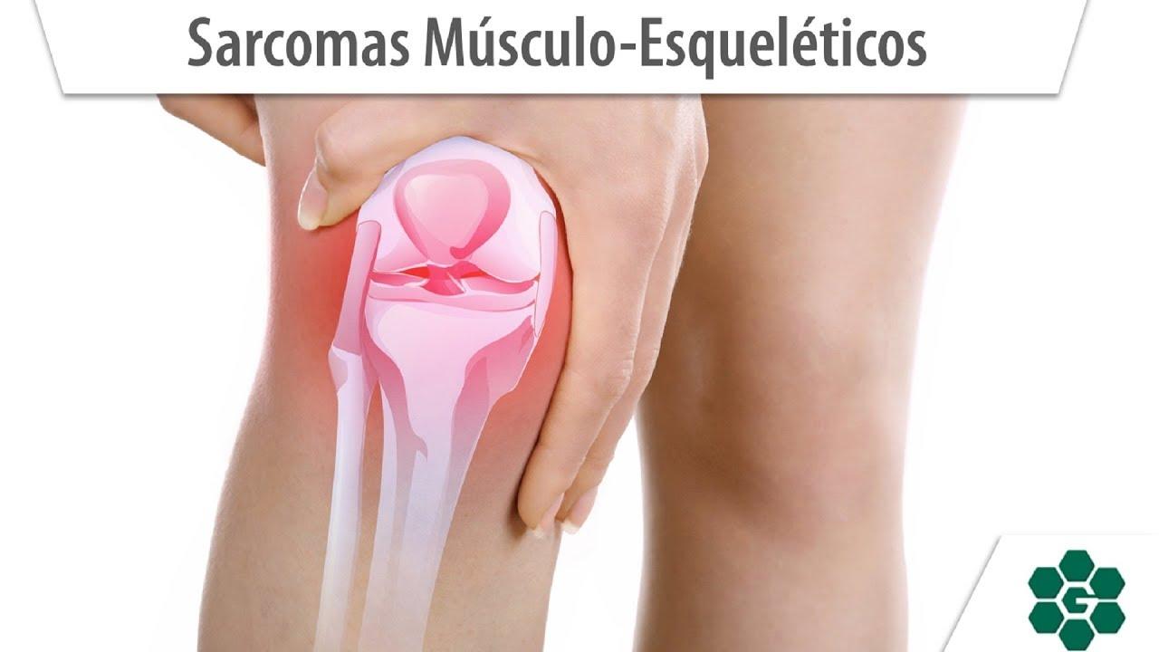 Cancer sarcoma en la pierna