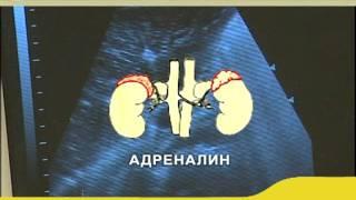 видео Гипертоническая болезнь