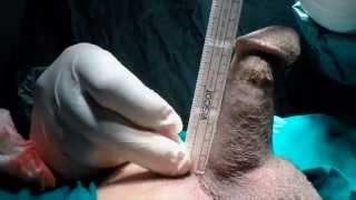 Repeat youtube video المستوي المتقدم في زراعة دعامة العضو الذكري لعلاج ضعف الانتصاب