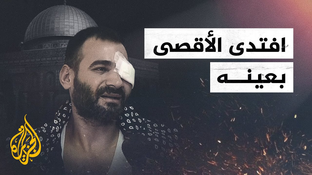 شاب فلسطيني يفقد عينه أثناء مواجهة قوات الاحتلال في ساحات الأقصى  - نشر قبل 2 ساعة
