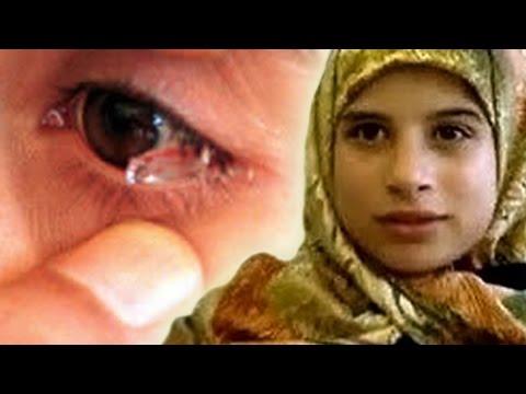 เด็กหญิงที่ร้องไห้ออกมาเป็นคริสตัล | เด็กหญิงวัย12ปีชาวเลบานอน ผู้มีน้ำตาเป็นคริสตัล