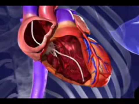 animation new therapy prevents heart failure youtube