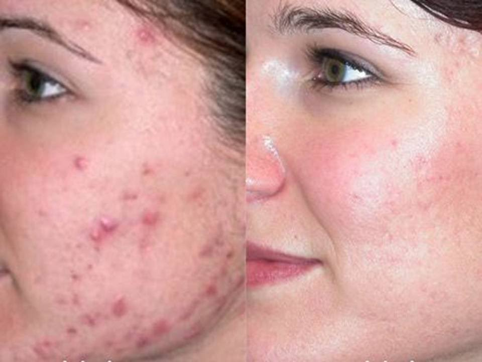 How To Clear Acne Fast Naturally