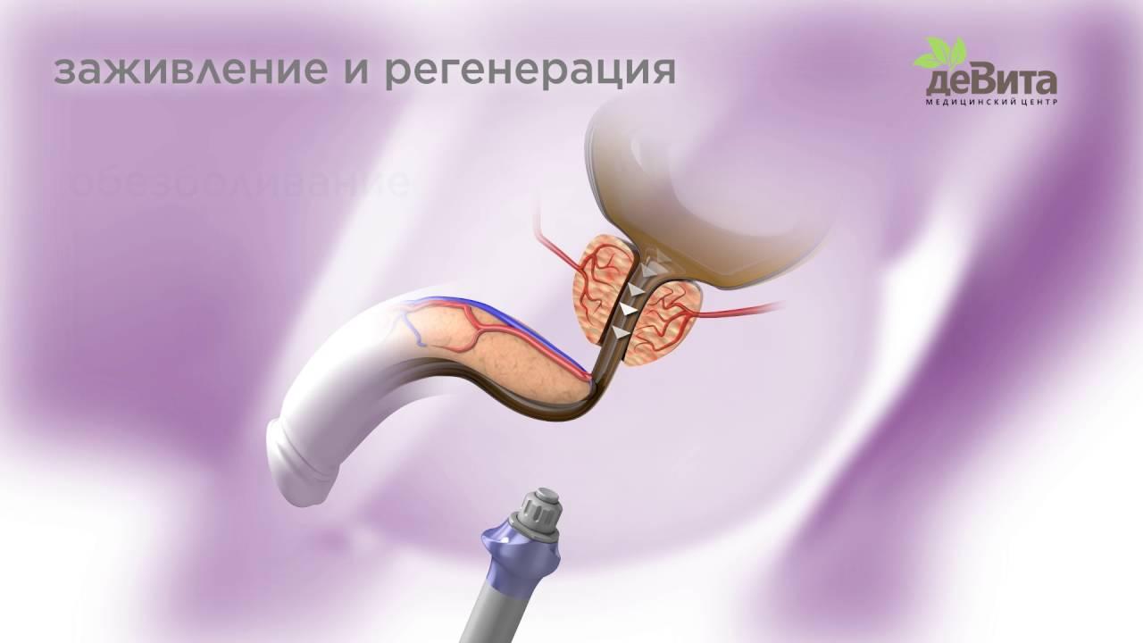 Лечение простатита методом ударно во