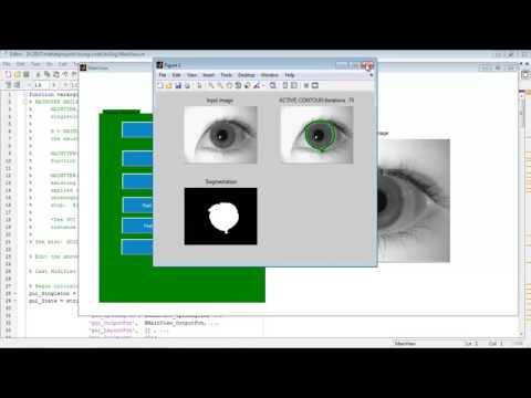 Iris segmentation matlab code projects