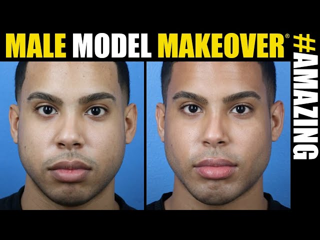 Male Model Makeover #10 with Dr. Douglas Steinbrech