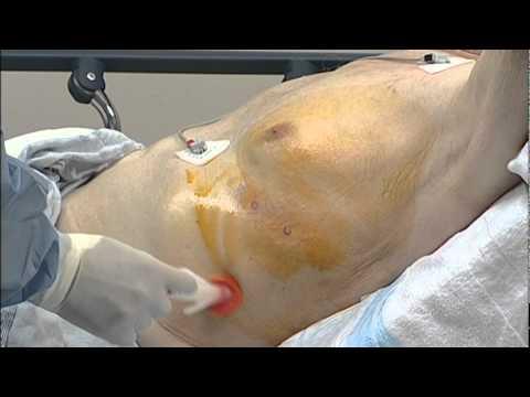 CareFusion -- PleurX Catheter Placement Video