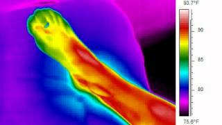 Thermoregulation FOOT VIDEO
