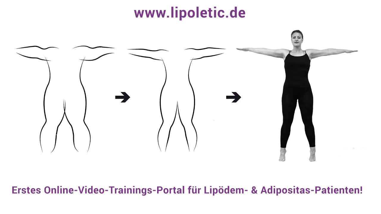 xx(dup) Day 6: Conservative Treatment & Exercise for Lipedema