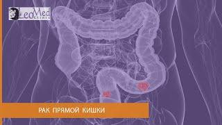 Рак прямой кишки(http://www.leomed.com.ua/ (044) 426 92 58 Рассказывает Зинченко Ольга Анатолиевна. Причины возникновения рака прямой кишки...., 2016-02-10T12:23:17.000Z)