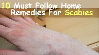 10 Must Follow Home Remedies For Scabies