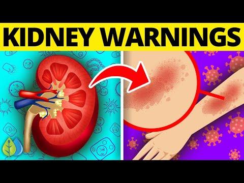 ⚠️10 Early Signs Of Kidney Disease (Chronic Kidney Disease)